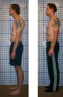 Stopping Back Pain through Alignment Therapy